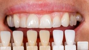 dental-veneer-colors