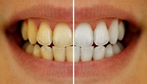 preventing-teeth-staining-tips