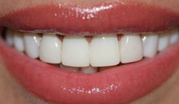 dental-veneers-sensitivity