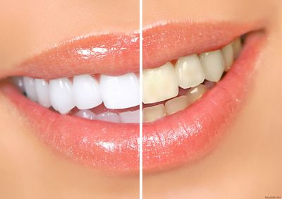 tooth-bleaching-effectiveness