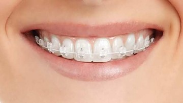 strong-ceramic-braces