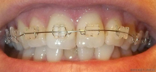 tooth-discoloration-after-b