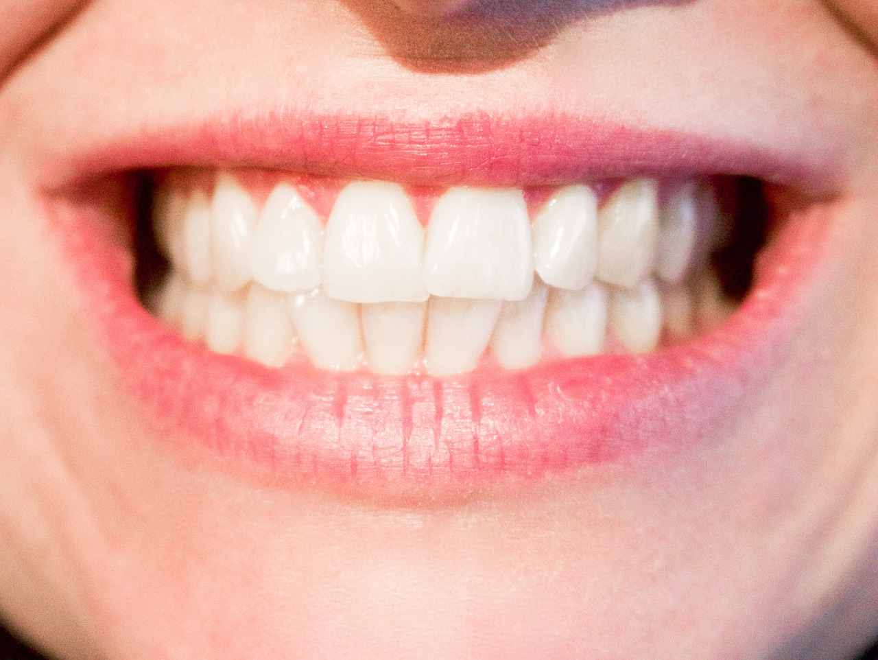 teeth whitening facts and myths
