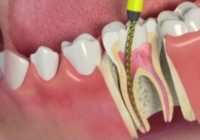 Endodontic Treatment Facts
