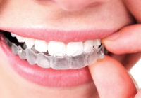 Invisible Orthodontics