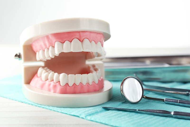 full mouth denture implants