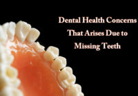 Missing Teeth Concerns